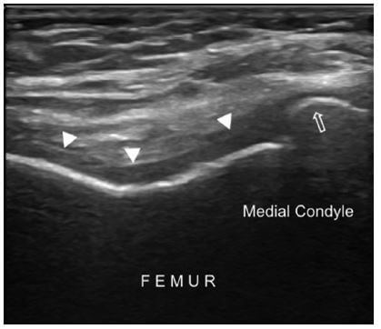 Transverse US imaging of the femoral condyles shows blurred margins and decreased clarity of the femoral cartilage (arrowheads), cortical irregularity and osteophyte on the bony surface (open arrow).