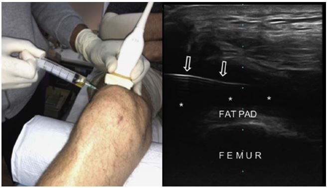 US-guided suprapatellar bursa injection from the lateral side using the in-plane approach (left side). The corresponding US image shows effusion (asterisks) and the needle (arrows).
