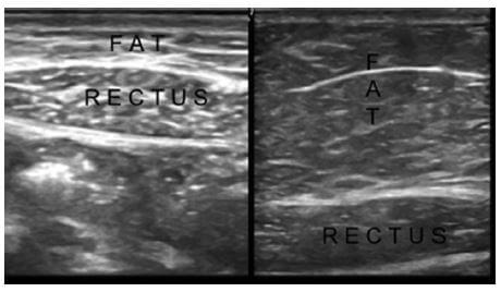US images show the different tissue compartments in a thin (left side) and an obese (right side) subject.