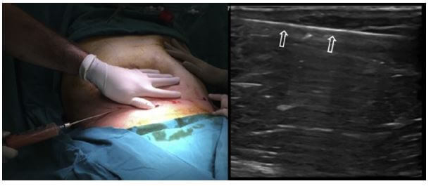 The lipoaspiration procedure under local anesthesia (left side) and the longitudinal US image (right side) of the lipo-aspiration cannula (open arrows).