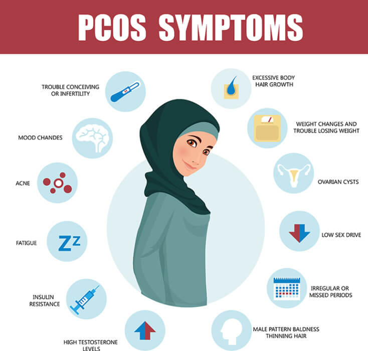 What is Polycystic Ovarian Syndrome (PCOS)