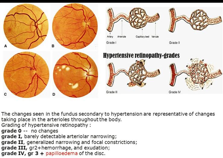 htn- retinopath