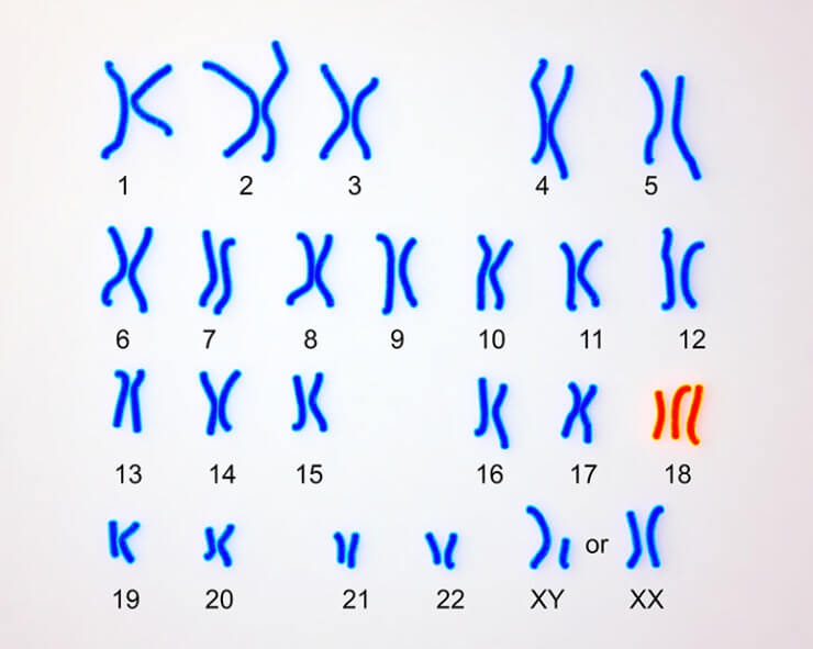 Edwards-syndrome karyotype, labeled. Trisomy 18