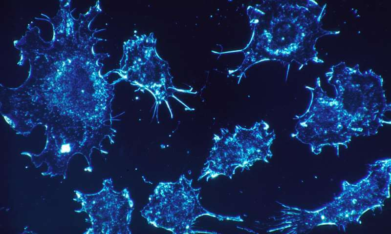 Cancer cells - Credit Dr. Cecil Fox - National Cancer Institute - Public Domain