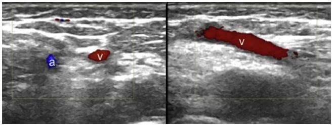 Axial US image shows the brachial artery (a) and basilic vein (v) in the cubital fossa (left side). Longitudinal US image of the basilic vein (v) (right side).