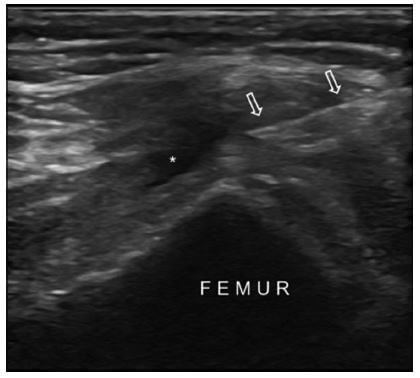 US image shows the in-plane approach for the suprapatellar bursa injection from the medial side in a patient with knee osteoarthritis. Asterisk shows the mild effusion and arrows indicate the needle.