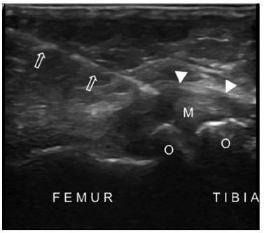 US image shows the medial collateral ligament injection in a patient with knee osteoarthritis. The needle (arrows) is advanced into the medial collateral ligament (arrowheads). Also note the narrowed tibiofemoral joint space, protruded medial meniscus (M) and osteophytes (O).