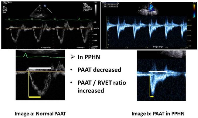 Pulmonary artery acceleration time (PAAT) measurement
