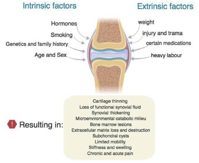 . Factors contributing to the progression of KOA.
