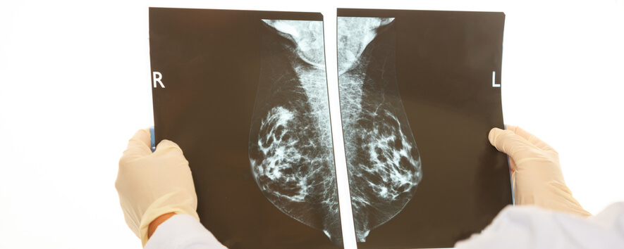 doctor examining mammogram for breast cancer