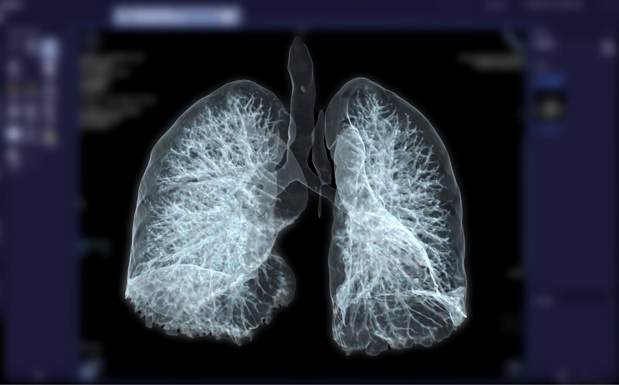 lung nodules